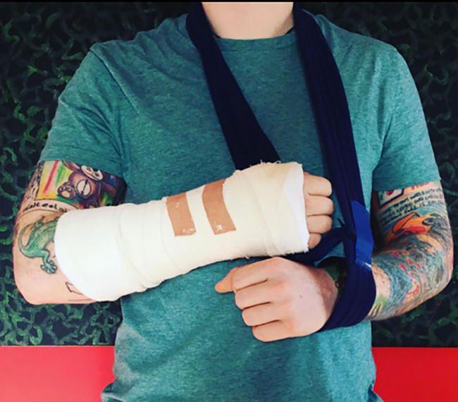 Ed Sheeran, Bisiklet Kazalarının Kapsamı Açıklandıkça Bölünme Tur Tarihlerini İptal Etmeye Zorlandı