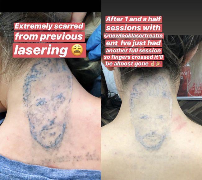 Holly Hagan de Geordie Shore montre aux fans le retrait de son tatouage Kyle Christie