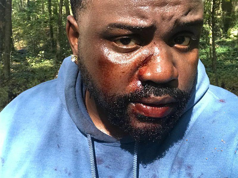 Atlanta Review: Saison 2, épisode 8 - 'Woods